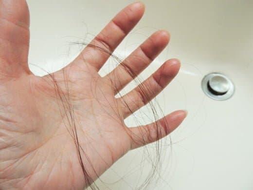 女性男性型脱毛症(FAGA)の症状が現れた時に意識すべきポイント