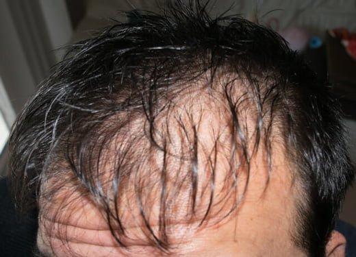 ハゲ種類の特徴を見極めて薄毛の原因を突き止めることが対策につながる